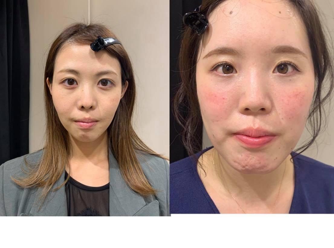 顔タイプキュートと顔タイプフェミニンお顔比較!似合うアウター